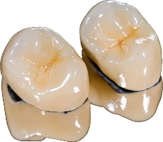 PFM Crown- Traditional tooth coloured crown