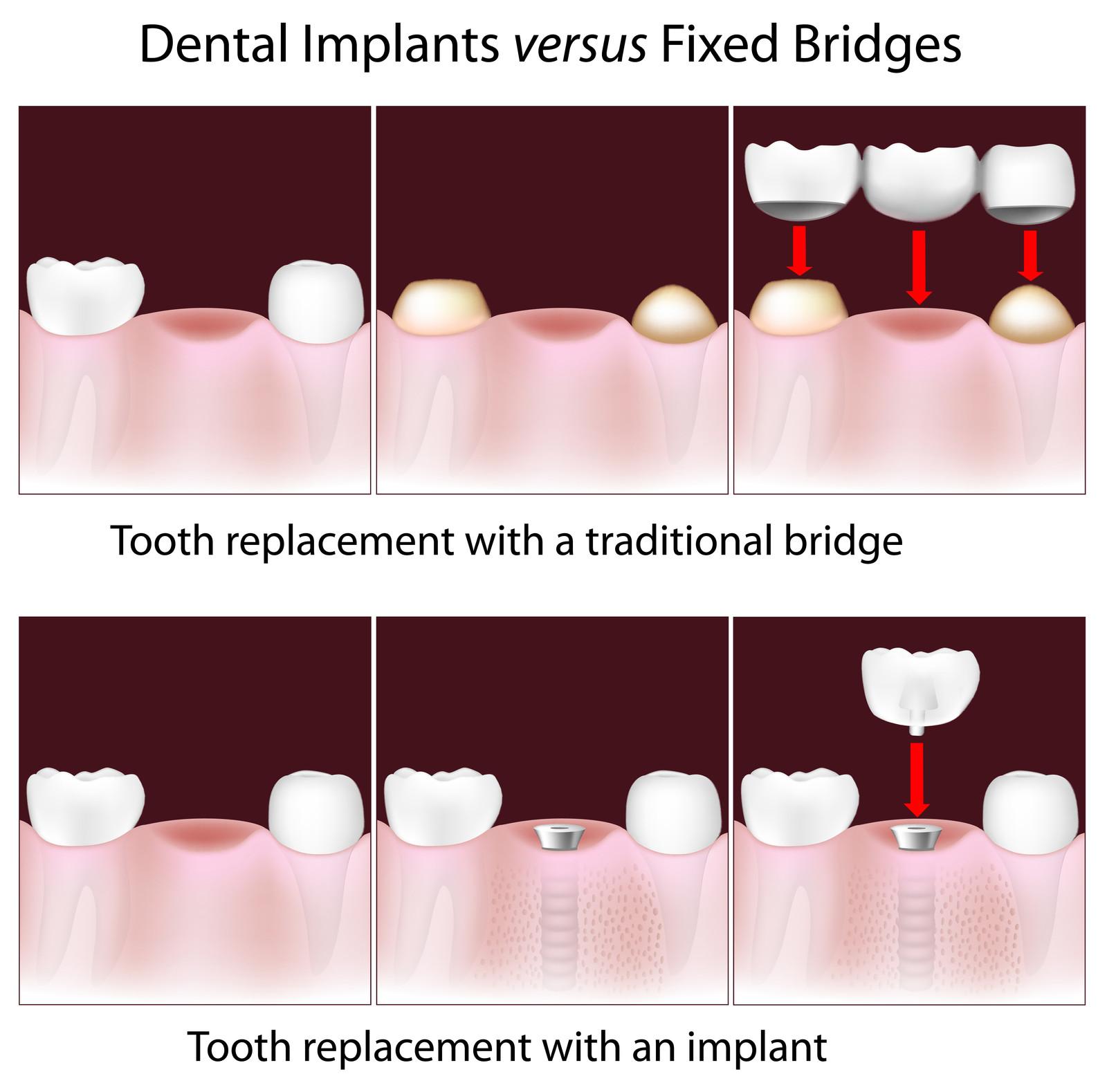 Fig 2. Implants Vs. Fixed Bridges