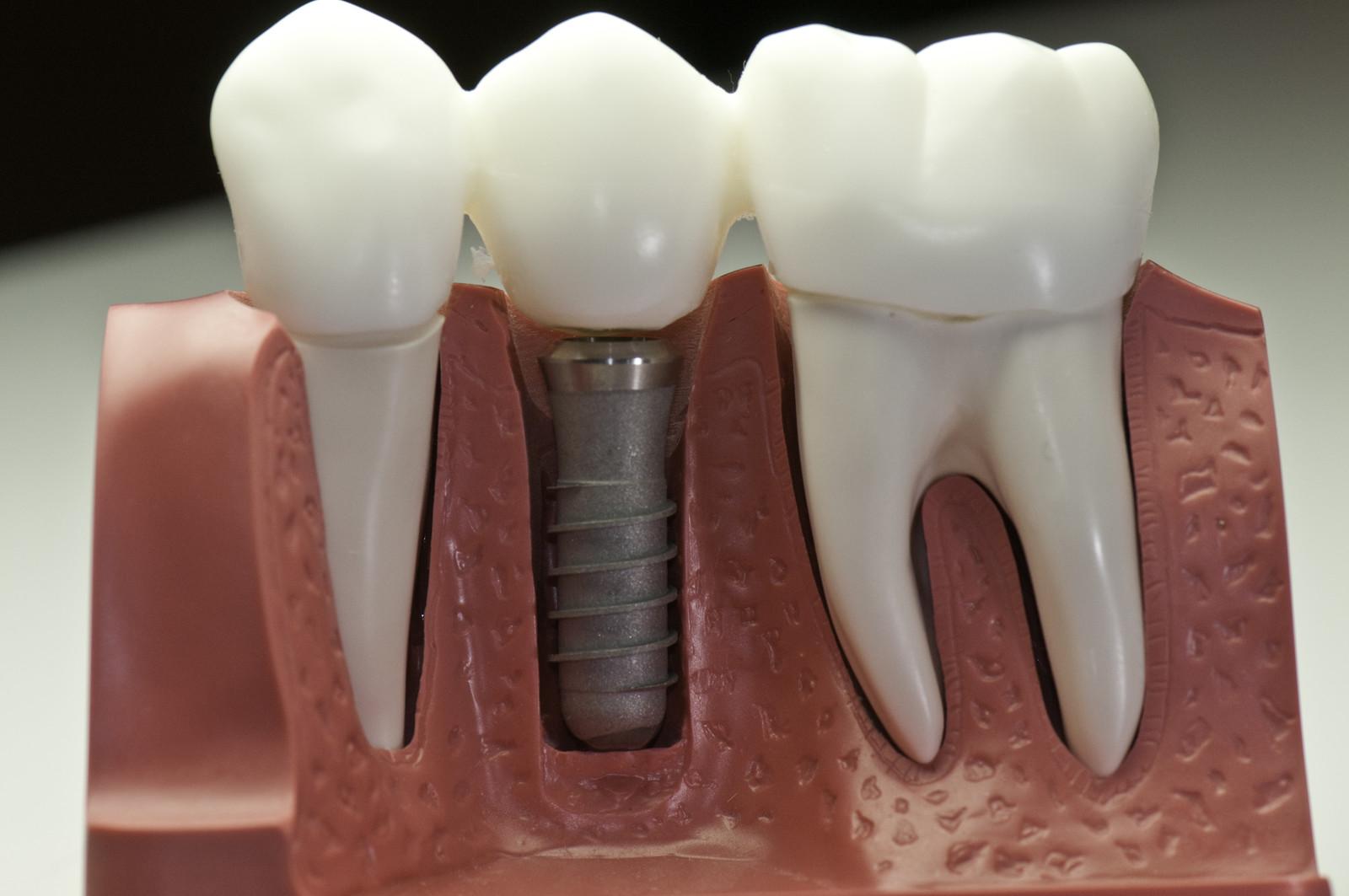 Fig 1: Implant Model